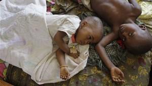 malaria kid